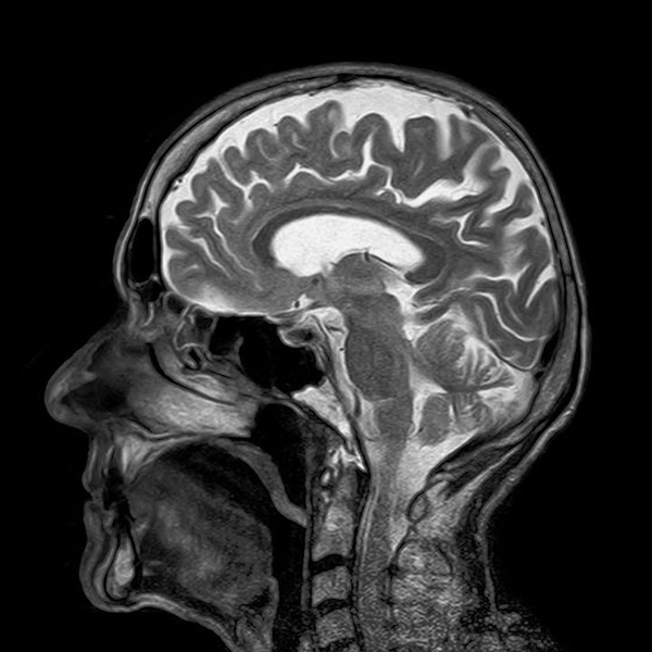 МРТ снимок головного мозга