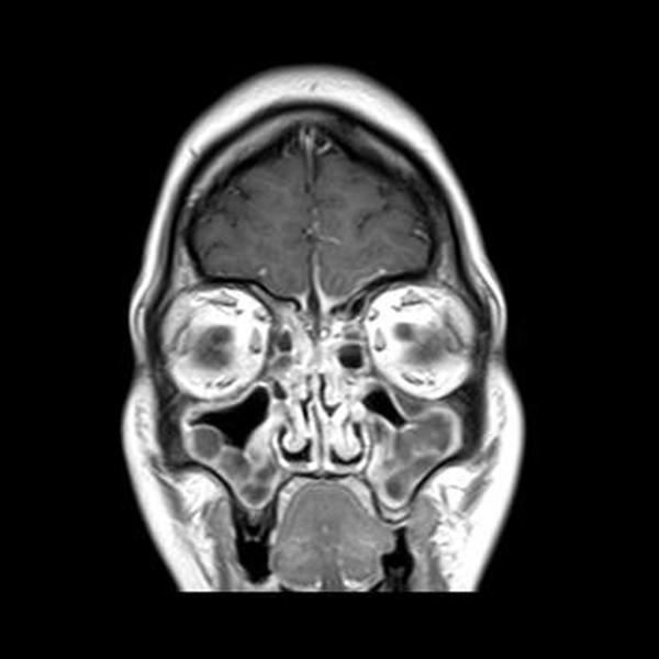 гайморит на снимке МРТ