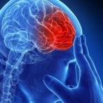 Инсульт на МРТ головного мозга