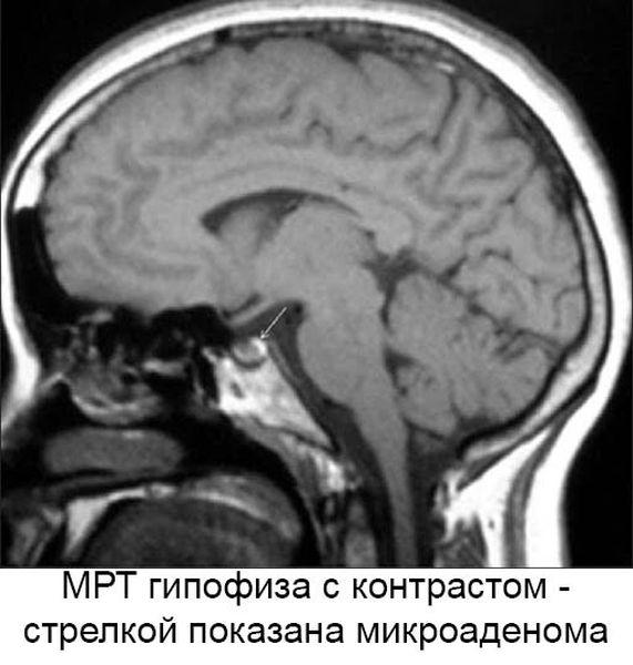 МРТ снимок гипофиза с контрастом